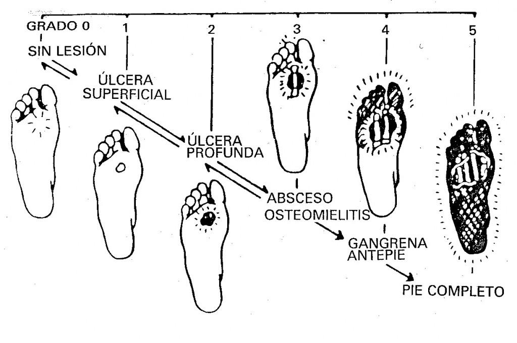 Clasificación de Wagner del pie diabético