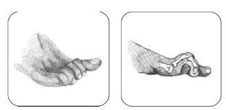 deformaicones en los dedos pie diabetico